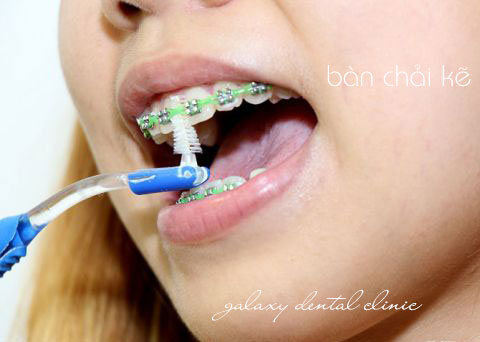 https://bacsynhakhoa.vn/img/galaxy-dental-ban-chai-ke-ve-sinh-rang-luc-nieng-rang.jpg