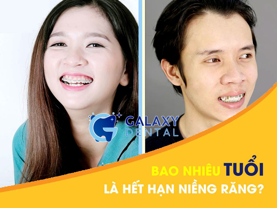 https://bacsynhakhoa.vn/img/galaxy-dental-bao-nhieu-tuoi-la-het-han-nieng-rang.jpg