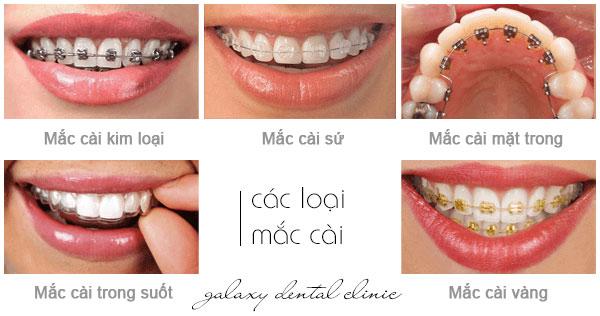 https://bacsynhakhoa.vn/img/galaxy-dental-cac-loai-mac-cai-trong-chinh-nha.jpg