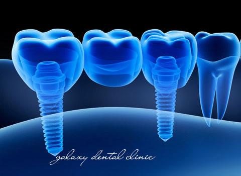 https://bacsynhakhoa.vn/img/galaxy-dental-cam-implant-co-dau-khong.jpg