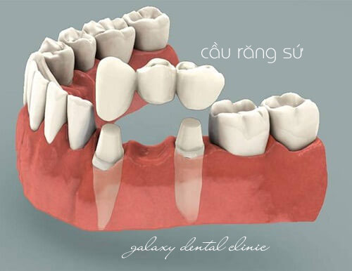 https://bacsynhakhoa.vn/img/galaxy-dental-cau-rang-su-co-dinh.jpg