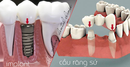 https://bacsynhakhoa.vn/img/galaxy-dental-cau-rang-su-va-implant.jpg