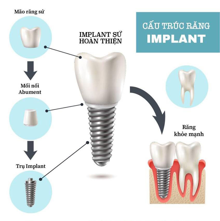 https://bacsynhakhoa.vn/img/galaxy-dental-cau-truc-implant-02.jpg