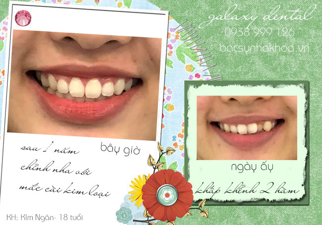 https://bacsynhakhoa.vn/img/galaxy-dental-chinh-nha-mac-cai-kim-loai-dieu-tri-rang-lech-lac.jpg