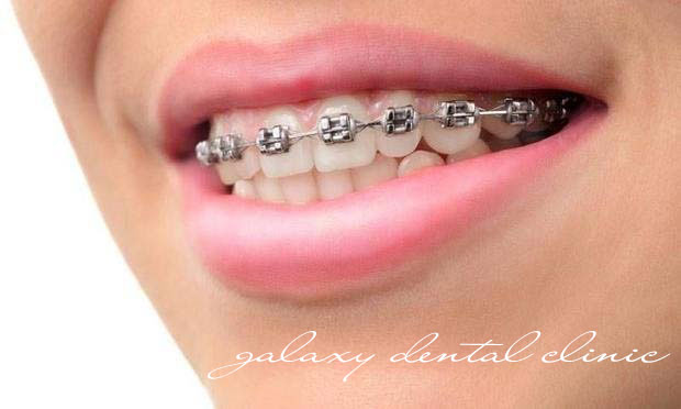 https://bacsynhakhoa.vn/img/galaxy-dental-chinh-nha-mac-cai-kim-loai-mat-ngoai02.jpg