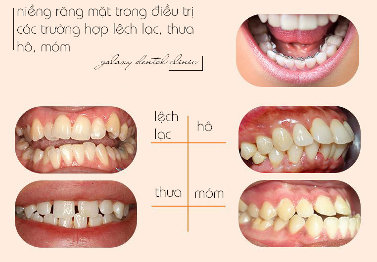 https://bacsynhakhoa.vn/img/galaxy-dental-chinh-nha-mat-trong-dieu-tri-cac-truong-hop-ho-mom-lech-lac.jpg