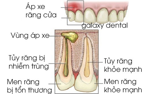 https://bacsynhakhoa.vn/img/galaxy-dental-co-che-gay-ra-ap-xe-chan-rang.jpg