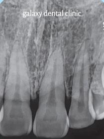 https://bacsynhakhoa.vn/img/galaxy-dental-film-can-chop.jpg