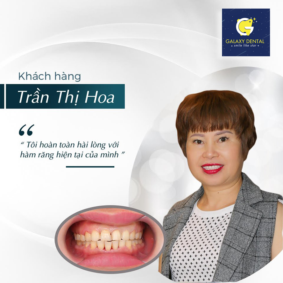 https://bacsynhakhoa.vn/img/galaxy-dental-hai-long-voi-dich-vu-nha-khoa-galaxy.jpg