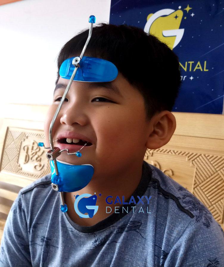 https://bacsynhakhoa.vn/img/galaxy-dental-khi-cu-facemask-huukhang.jpg