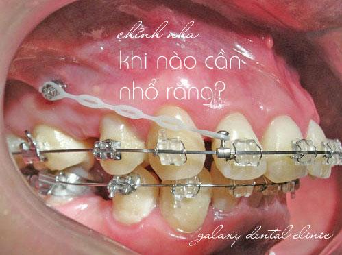 https://bacsynhakhoa.vn/img/galaxy-dental-khi-nao-can-nho-rang-khi-chinh-nha.jpg