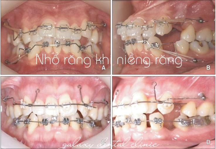 https://bacsynhakhoa.vn/img/galaxy-dental-khi-nao-can-nho-rang-khi-nieng-rang.jpg