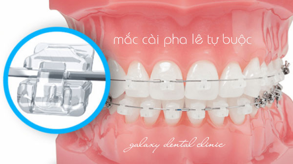 https://bacsynhakhoa.vn/img/galaxy-dental-mac-cai-tu-buoc.jpg