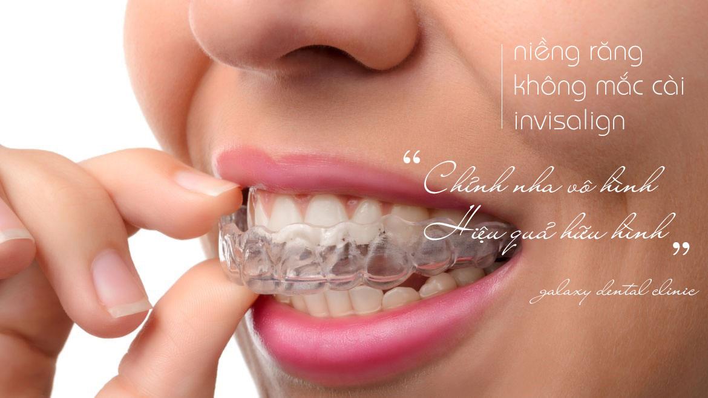 https://bacsynhakhoa.vn/img/galaxy-dental-nieng-rang-khong-mac-cai-invisalign-03.jpg