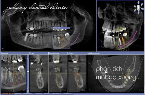 https://bacsynhakhoa.vn/img/galaxy-dental-phan-tich-mat-do-xuong-truoc-khi-cay-ghep-implant.png