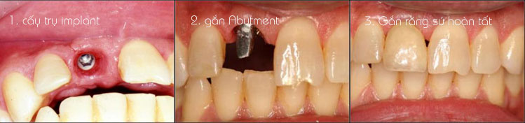 https://bacsynhakhoa.vn/img/galaxy-dental-quy-tr%C3%ACnh-cay-ghep-implant-04.jpg
