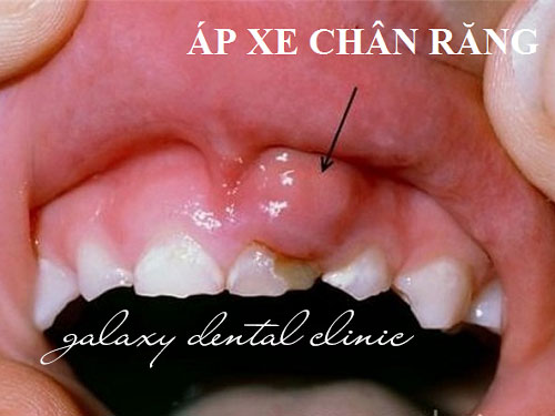 https://bacsynhakhoa.vn/uploads/galaxy-dental-ap-xe-nuou-do-sau-rang-02.jpg