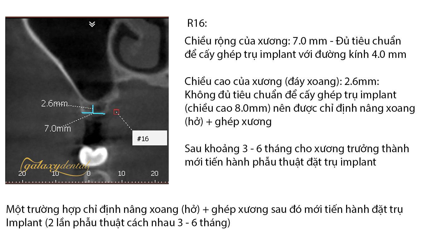 https://bacsynhakhoa.vn/uploads/galaxy-dental-nang-xoang-ho-ghep-xuong-trong-cay-ghep-implant-nha-khoa.jpg
